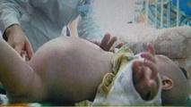 """ولادة طفل """"حامل"""" في شقيقه التوأم في الهند"""
