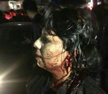 اثار الدماء على وجه ايرانية تعرضت للضرب من قبل رجال الحرس الثوري