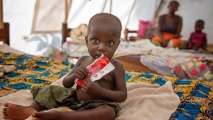 تقرير :821 مليون جائع في العالم أغلبهم في إفريقيا وآسيا