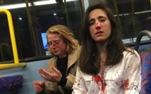 القبض على شباب ضربوا امرأتين مثليتين داخل حافلة في لندن