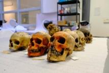 متحف أكسفورد يزيل الرؤوس المقطوعة والجماجم في حملة تطهير