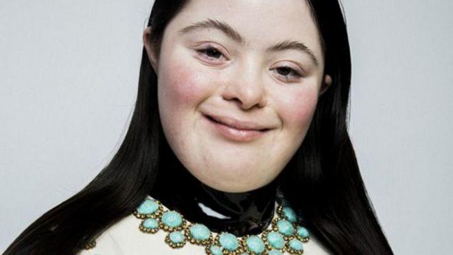 لأول مرة عارضة أزياء بمتلازمة داون تظهر في مجلة فوغ