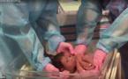 ممارسة خطيرة تطبق على الأطفال المولودين بعمليات قيصرية