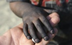 13 مليون طفل أمريكي تحت خط الفقر