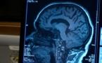 الولايات المتحدة توافق على أول دواء جديد  للزهايمر منذ 20 عاما