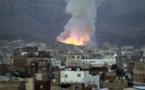 43 قتيلا على الأقل ونحو 100 جريح في غارات التحالف على صنعاء